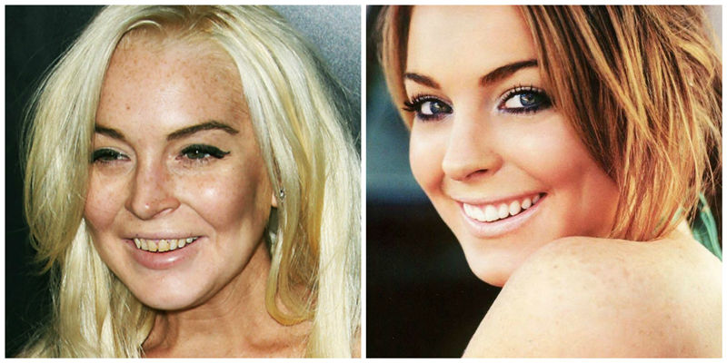cosmetic-dentistry-sacramento-dr-monica-crooks-california-celebrity-teeth